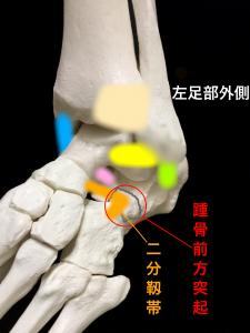 踵骨前方突起骨折 踵骨前方突起と二分靭帯|大阪市住吉区長居藤田鍼灸整骨院