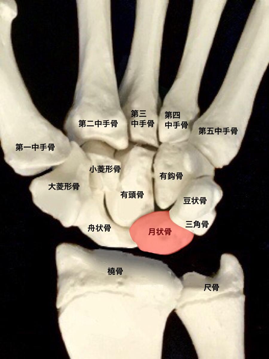 痛み 手 側面 小指 側