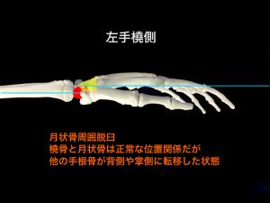 月状骨周囲脱臼 大阪市住吉区長居藤田鍼灸整骨院