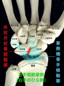 舟状月状骨間靭帯、手の痛み、親指のつけ根の痛み|大阪市住吉区長居藤田鍼灸整骨院