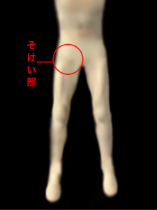 股関節障害によるそけい部の痛み|住吉区長居西藤田鍼灸整骨院