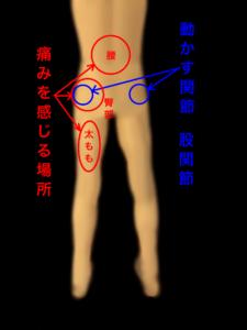 股関節の痛みと腰や太ももに出でる関連痛|住吉区長居西藤田鍼灸整骨院
