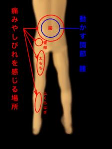 腰の運動と関連痛、神経痛|住吉区長居西藤田鍼灸整骨院