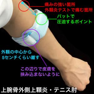 上腕外側上顆炎、テニス肘、テニスエルボーバンドの装着方法|住吉区長居西藤田鍼灸整骨院